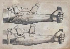William Harvey - Discovery of The Circulation of Blood