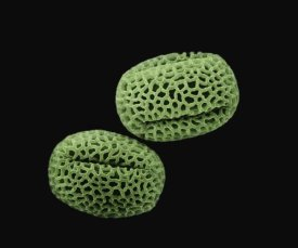 Albert Lleal - Olive (Olea europaea) pollen at 1400x magnification